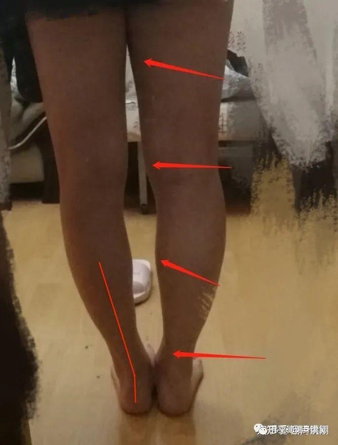 要想改善XO型腿,要先解決骨盆前傾,股骨內旋,膝超伸,脛骨內旋小腿外翻,跟骨內外翻,足弓過高或塌陷 ...