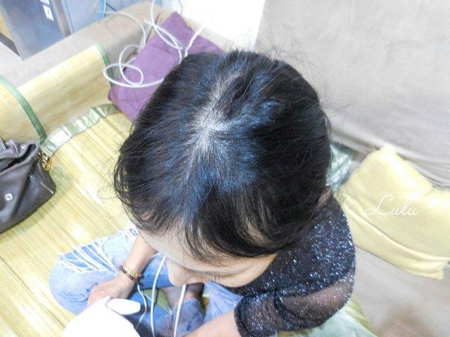 iRestore Hair Growth System來自美國的生髮雷射帽。美國FDA核可。每天25分鐘頭皮好健康 @就是這樣。吃喝玩樂。愛 ...