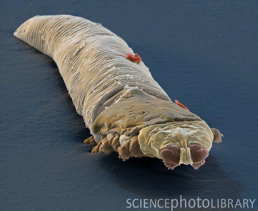 Kill Demodex Mites Humans