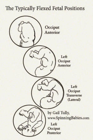The Typically Flexed Fetal Positions Occiput Anterior Left