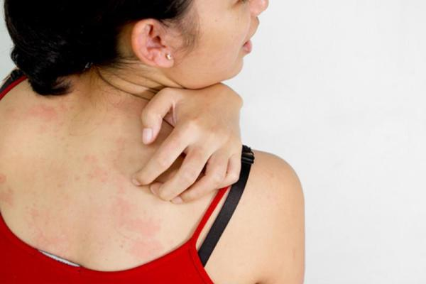Your skin could develop an itchy rash after you get a tattoo.
