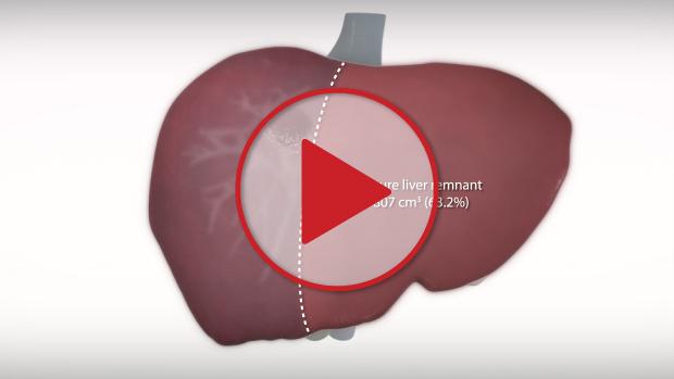 Liver Lobe Left