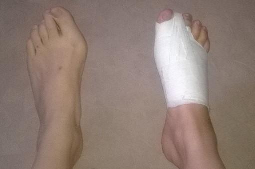 Convalescence du pied droit
