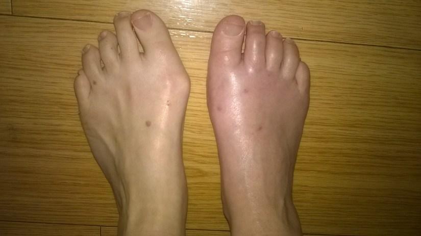 Veille de l'opération du pied gauche