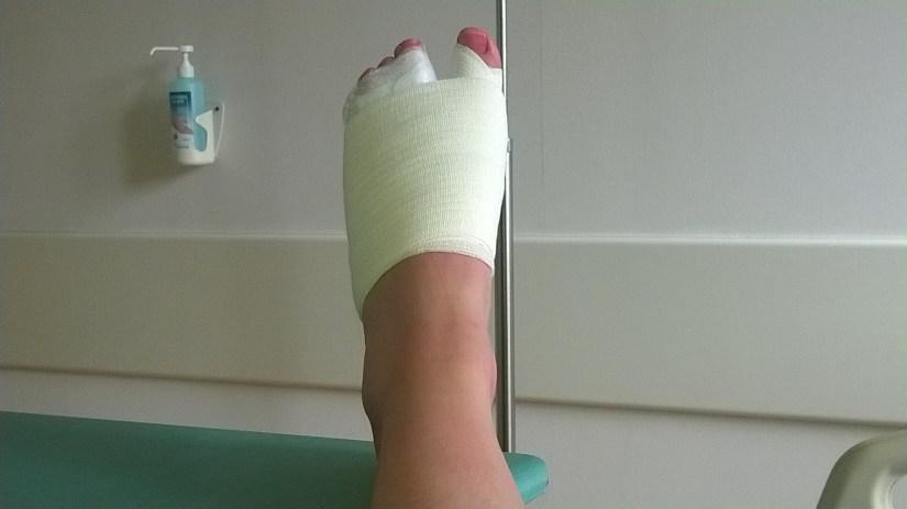 Convalescence du pied gauche