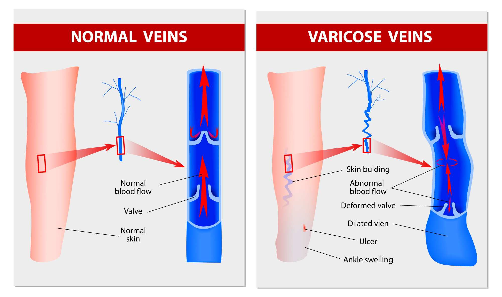 hight resolution of venous insufficiency at piedmont pmr