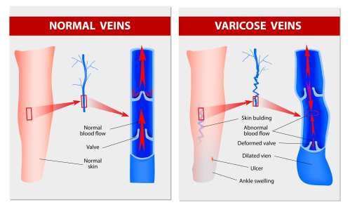 small resolution of venous insufficiency at piedmont pmr