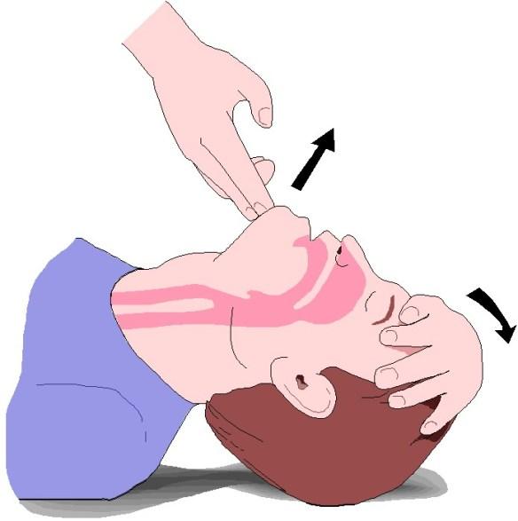 grafico maniobra frente menton