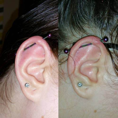 small resolution of how to cure an infected ear piercing