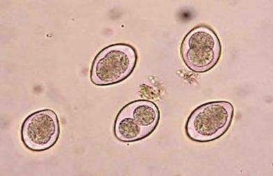 Oocysts of coccidia Eimeria sp