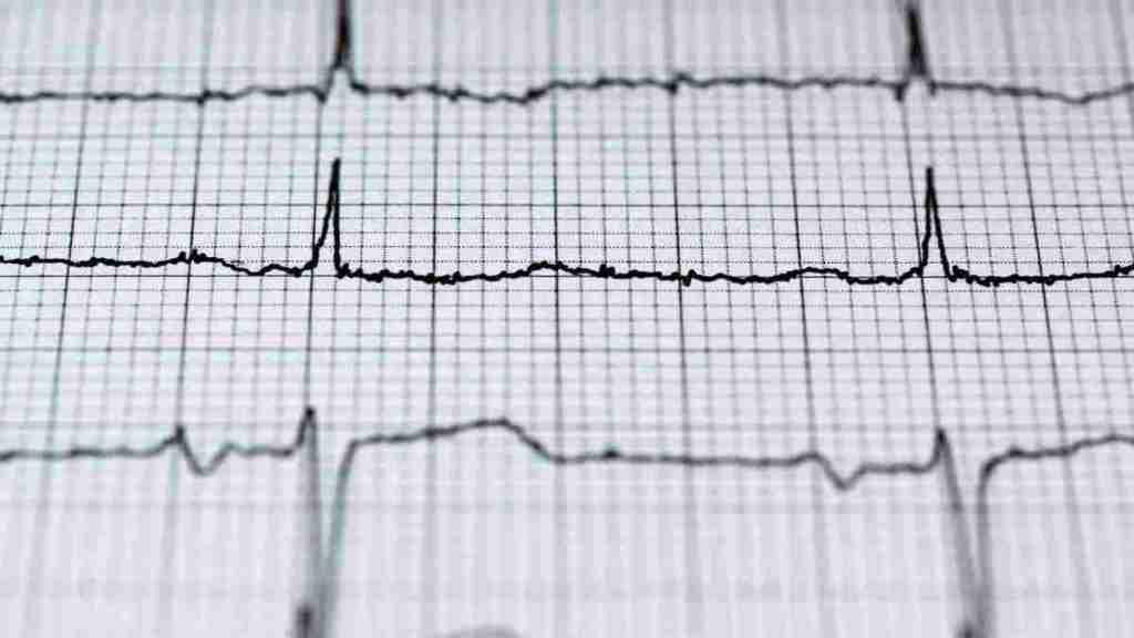 hipertensi ciri ciri serangan stroke