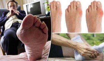Этиология клиника и диагностика подагры на ногах