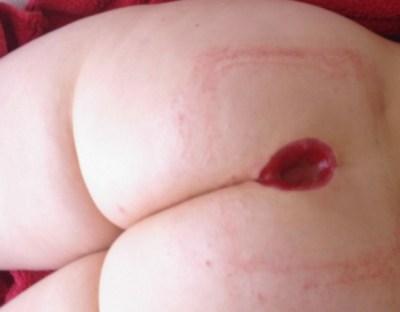 cicatrisation dirigée kyste pilonidal