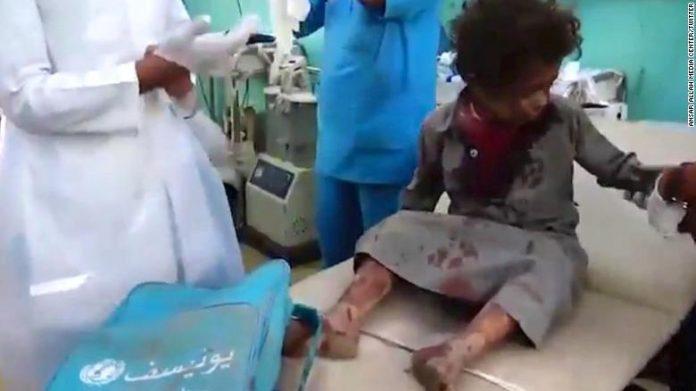 Ataque aéreo a autobús escolar deja 43 muertos en Yemen