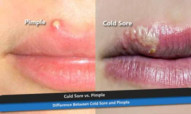 lip cold sore vs herpes the art of beauty