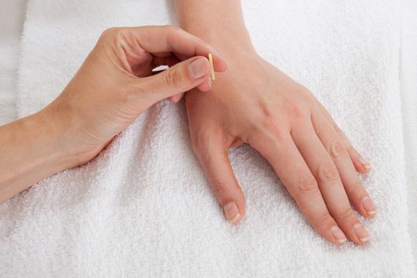 Acupuncture hand