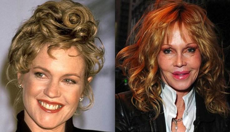 Le Top 15 des naufragés du Botox