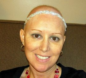 10 Reasons I Found the Good in Losing My Hair During Chemo - The Mighty