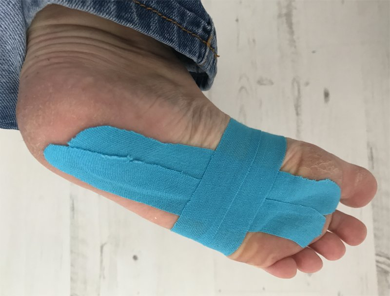 taping foot for plantar fasciitis