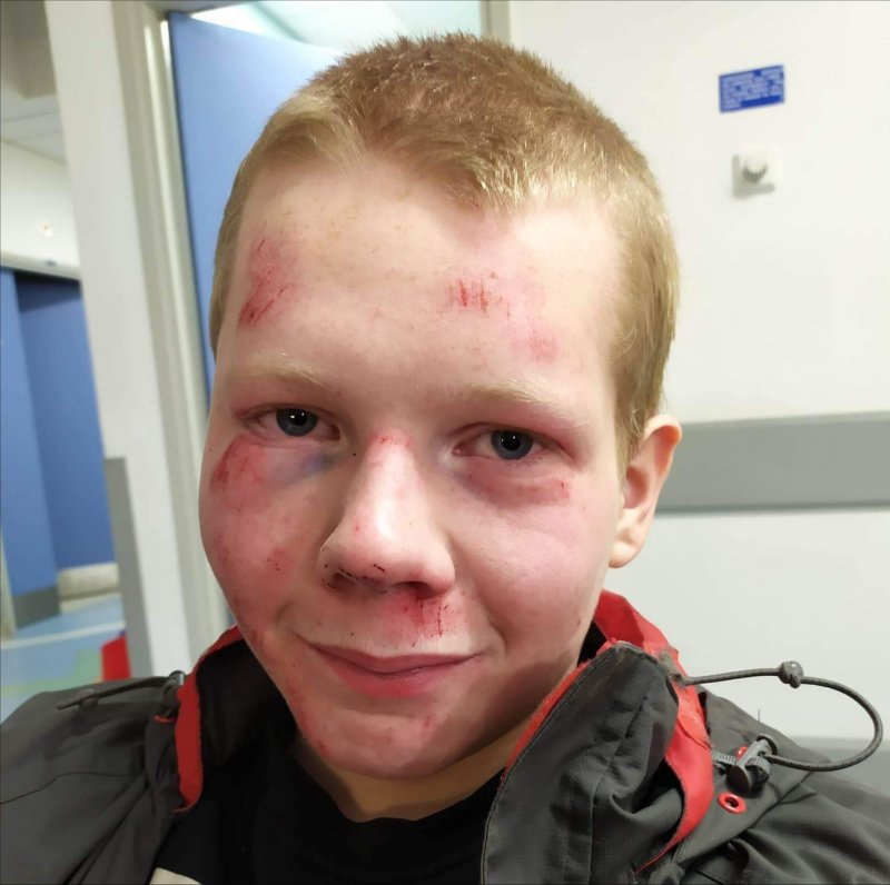 bruised face from falling on dry ski slope
