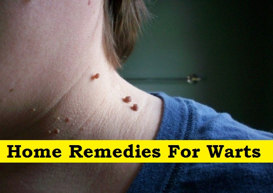 Home Remedies For Warts  PH Juander