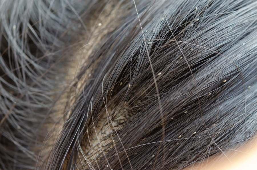 Penyebab dan 9 Cara Menghilangkan Kutu Rambut