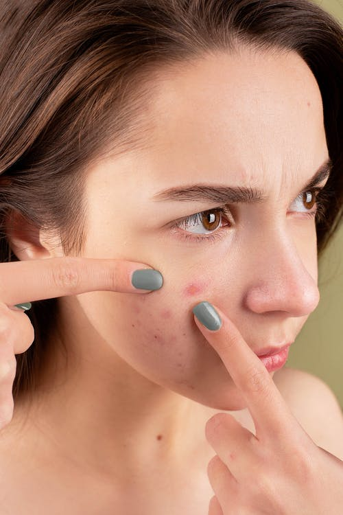 7 Penyebab Jerawat Gatal dan 5 Cara Mengatasinya