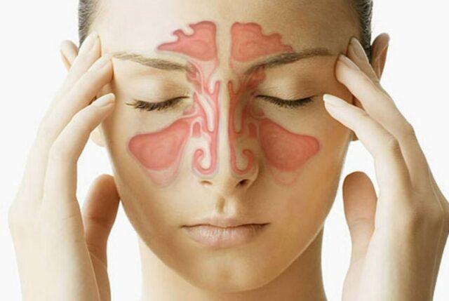 Uma foto mostrando a região do rosto afetada pela sinusite