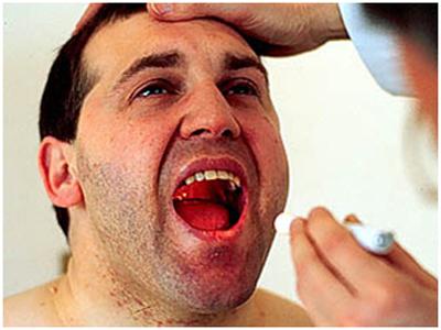 Кандидоз кишечника симптомы у мужчин