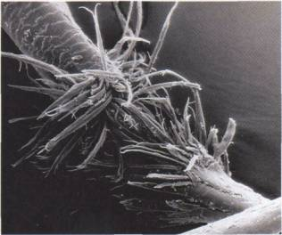 White dot on hair - magnified
