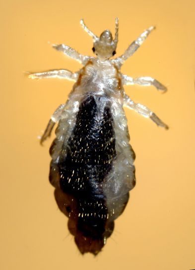 Free picture: body, lice, infestations, spread, rapidly, crowded, conditions, hygiene, poor