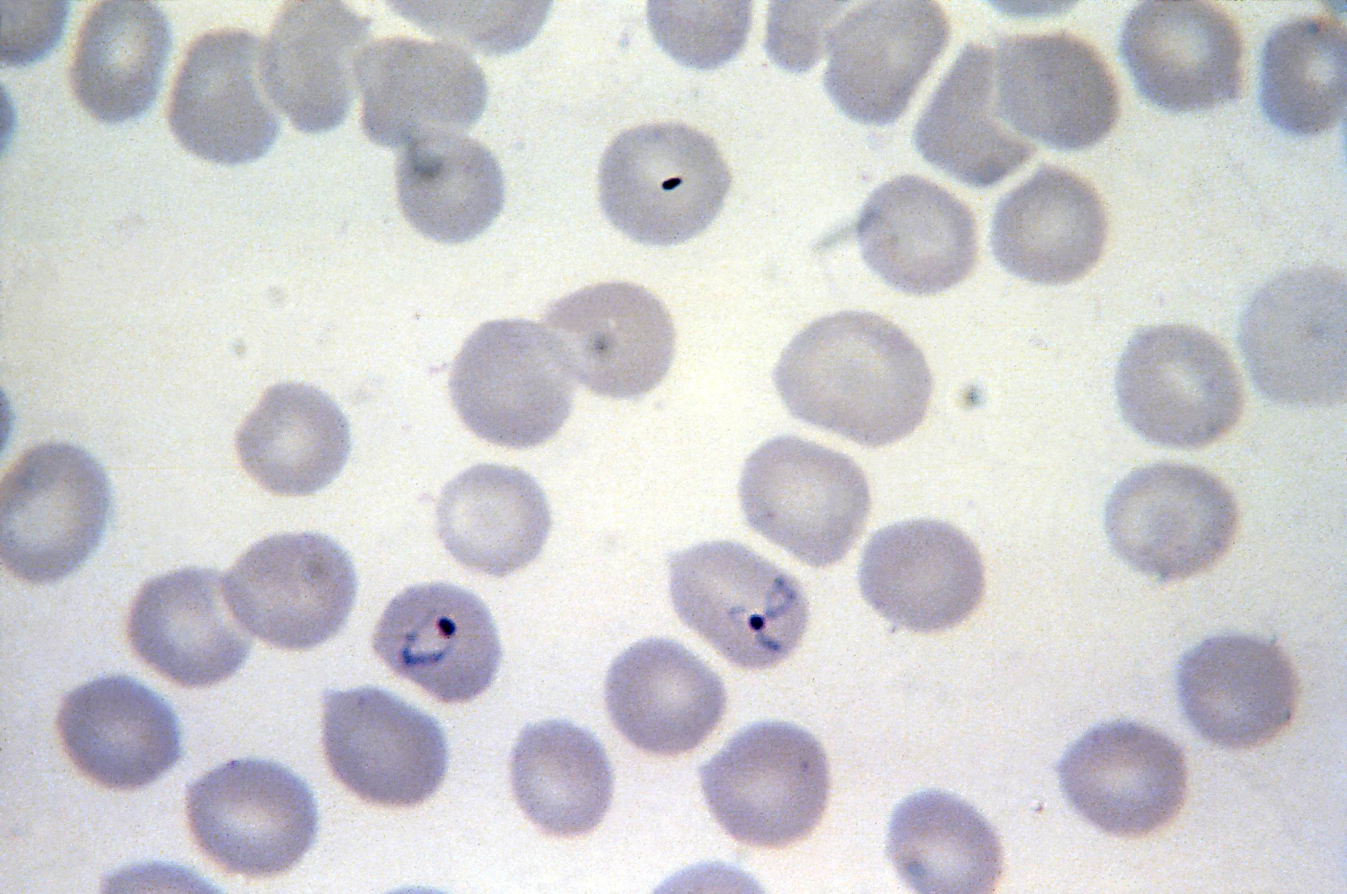 Free picture micrograph plasmodium vivax ring form