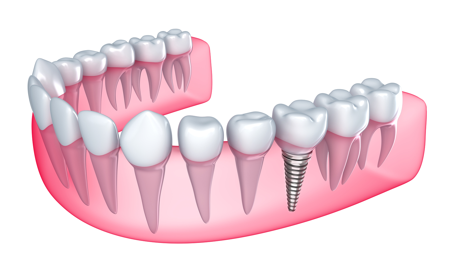 Here's Everything You Need To Know About Dental Implants ...