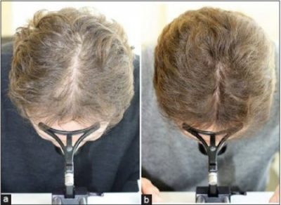 Laser hair therapy treatment women. Boston Mass.