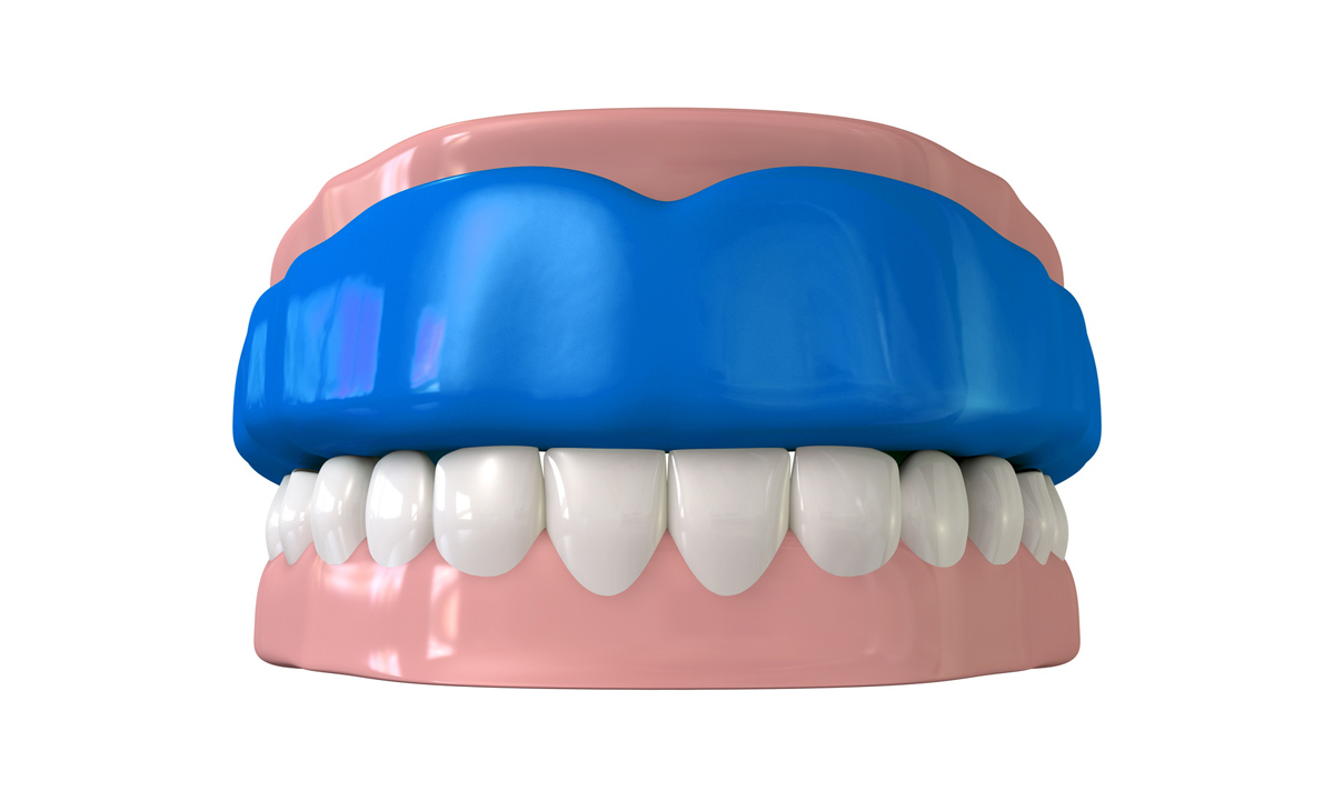 Placerville Customized Mouthguards  Placerville Dental Group