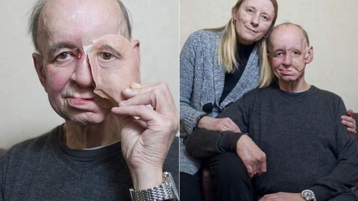 Reconstrucción facial 3D printing
