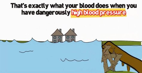 High Blood Pressure makes it easy for hazardous arterial plaque to cling to the walls of your Arteries.