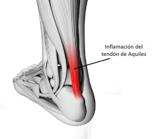 lesion de tendinitis aquilea en corredores