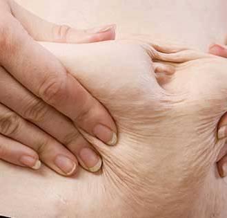 Flacidez abdominal: como combater e eliminar