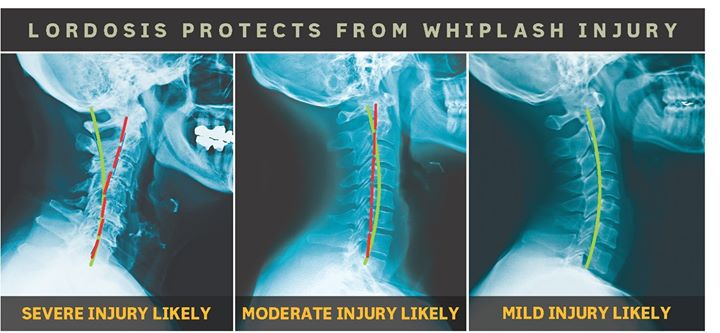 Whiplash Trauma Analysis and Management