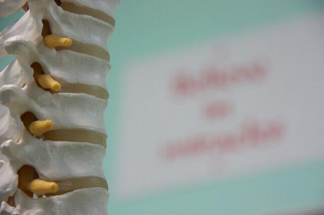 spine nerves plastic model