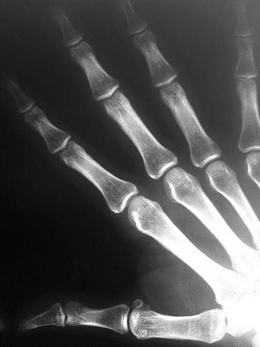 Right Hand X-ray