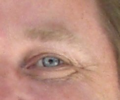 botulinum toxin and strabismus
