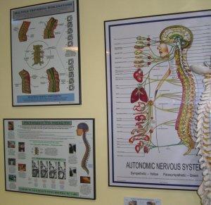 chiropractic posters - autonomic nervous system - vertebral subluxation
