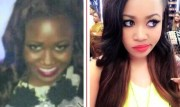 Self Hatred: Skin Bleaching Products Gives People The Ability Peel Their Darker Skin Away!
