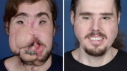 Man Gets Face Transplant After Failed Suicide Attempt!