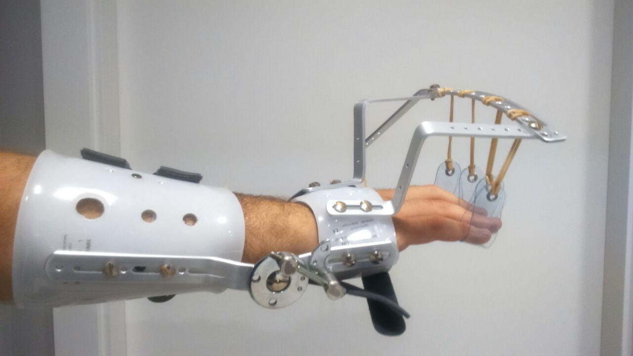 Ortesis dinmica de mueca y mano tipo DAHO en Ortopedia Plantia de DonostiaSan Sebastian