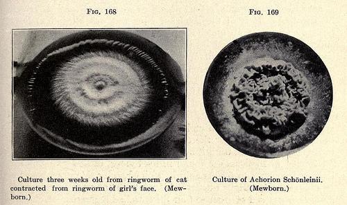Ringworm essential oils.