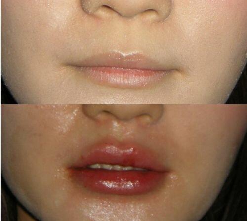 Pierde grăsime în gură, secreție crescută a glandelor sebacee posterioare