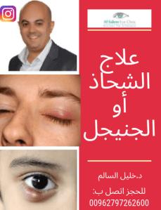 شحاد العين أو الجنيجل ، ماهيته و طرق علاجه مع دكتور خليل السالم . أفضل طبيب عيون بالأردن